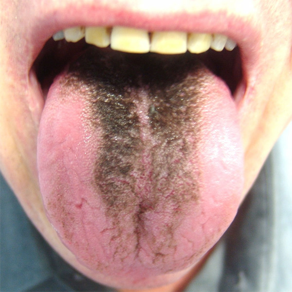 why-is-my-tongue-yellow?